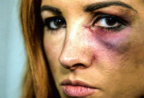 WWE Releases Exclusive Behind the Scenes Footage of Becky Lynch Learning She Can't Compete at Survivor Series